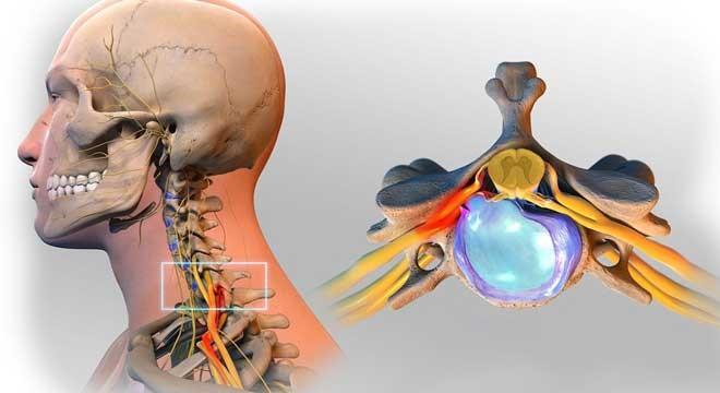 آناتومی گردن به چه صورت است ؟