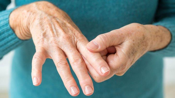 بیماری های روماتیسمی و پوستی: