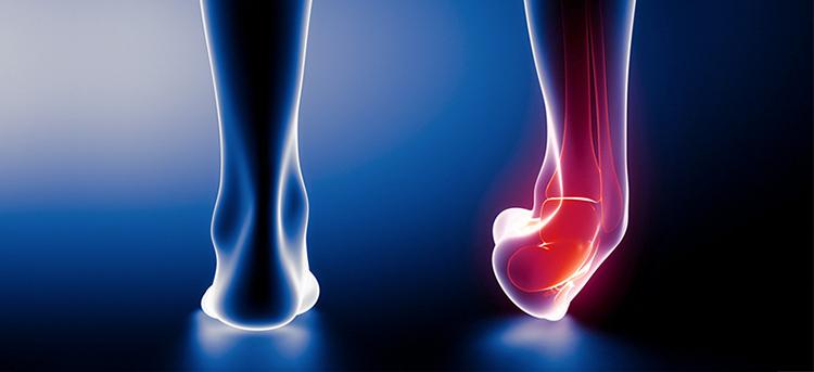 پس از بروز هر آسیب به مچ پا فیزیوتراپیست چگونه می تواند در افزایش یا کاهش هزینه ها موثر باشد؟