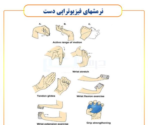 حرکات فیزیوتراپی دست شامل چه مواردی می شود؟