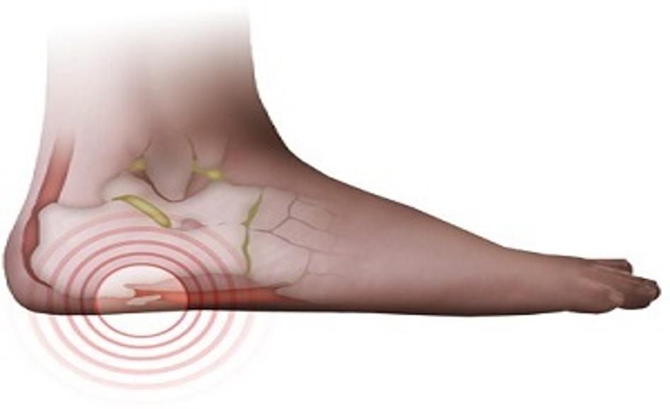 آیا همه افراد برای درمان مشکلات ناحیه عضلانی می توانند از روش الکتروتراپی استفاده کنند؟