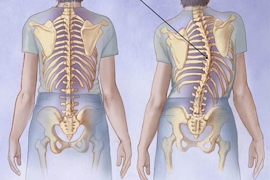 آیا بر اثر ورزش هم می شود به کمر درد مبتلا شد؟