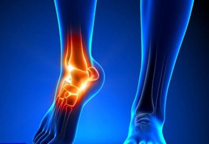 - چه عواملی بر هزینه های مربوط به فیزیوتراپی مچ پا در انواع مجروحیت ها تاثیر گذار می باشد؟