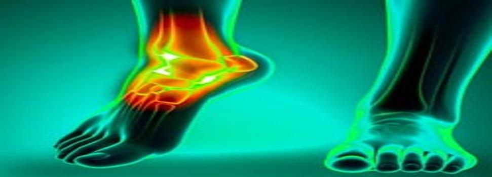 - آیا حضور فیزیو تراپیست در منزل می تواند به نوعی بر روی هزینه های مربوط به فیزیوتراپی مچ پا موثر باشد؟