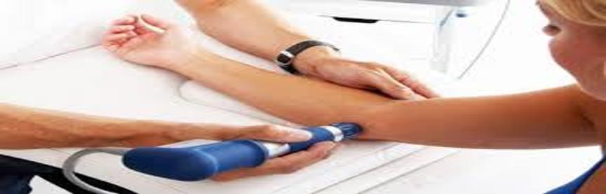 - طی چند جلسه می توان با استفاده از شاک ویو بیماری را درمان نمود؟