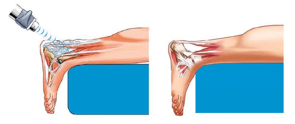 - آیا درمان با شاک ویو دردی را برای بیماران به همراه دارد؟