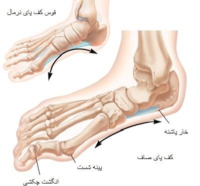 به طور کلی علائمی که ممکن است در بدن شما به وجود بیایند و از علت های درد کف پا باشند عبارتند از: