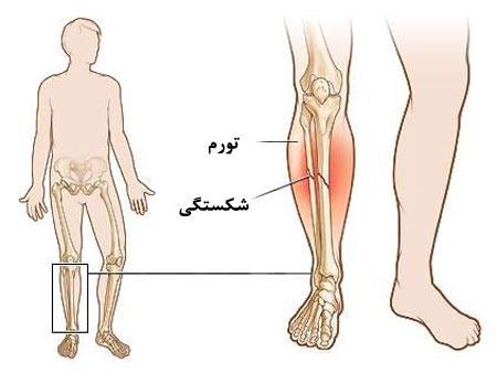 جراحت نرمه ساق پا: