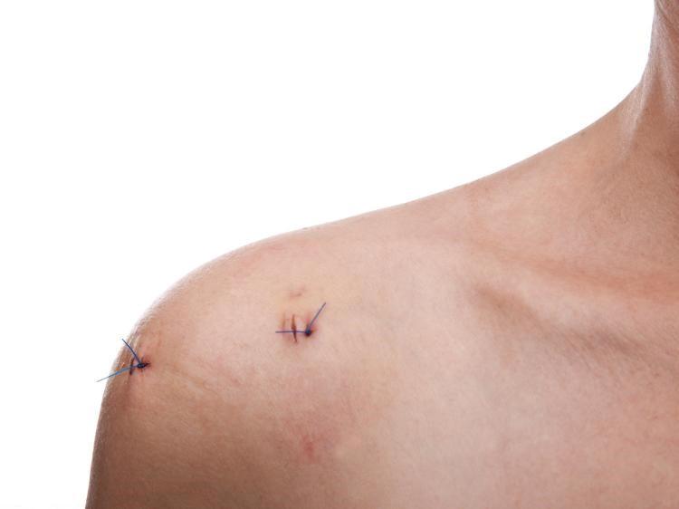فیزیوتراپی بعد از جراحی شانه
