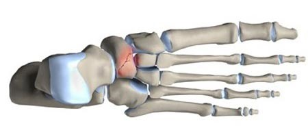 شکستگی استرسی کف پا