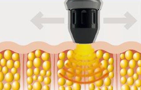 شاک ویوتراپی چه فوایدی دارد و چه بیماری هایی را می توان با آن درمان کرد؟