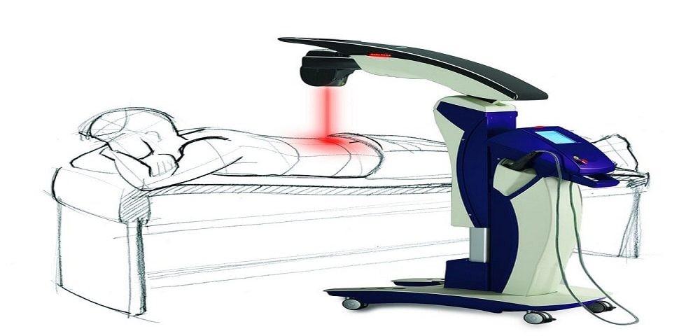اثر لیزر پر توان در فیزیوتراپی