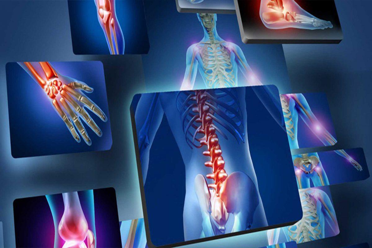 بطور کلی از رایج ترین انواع شکستگی ها در این عضو حساس از بدن میتوان به :