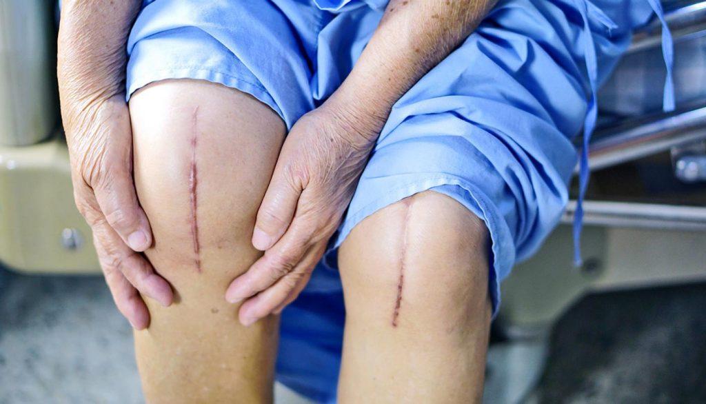 مشکلات پوستی و فیزیوتراپی