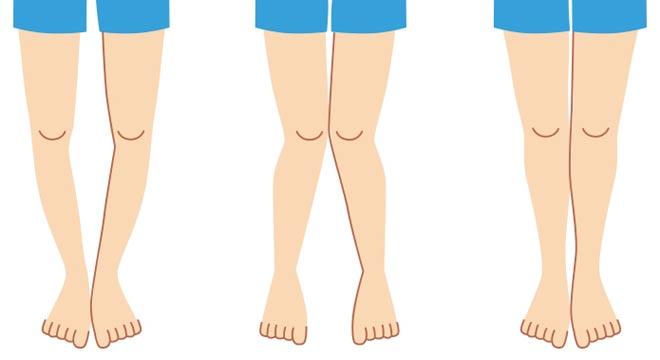آیا می دانید علائم تشخیص پای پرانتزی چیست؟