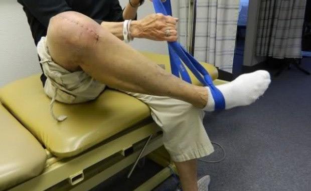 مراقبت های لازم بعد از عمل پای پرانتزی و چگونه میباشد؟