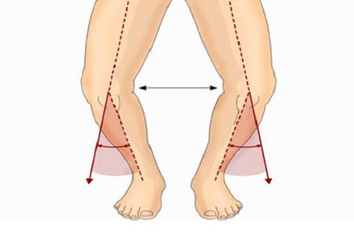 سن به وجود آمدن پای پرانتزی