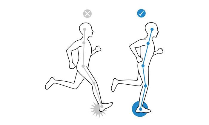 درمان از طریق فیزیوتراپی برای پای پرانتزی